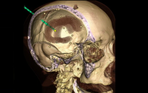 """<p style=""""text-align: left;"""">Investigators in the I-STAR Lab have worked on the development of novel imaging systems now standard-of-care in image-guided interventions - including cone-beam CT guidance of radiotherapy and mobile C-arms capable of high-quality 3D imaging in the OR. Such research spans a vibrant scope beyond the development of new hardware systems, including registration of multi-modality image data, integration with surgical navigation systems, and ensuring safe, streamlined implementation within clinical workflow.</p>"""