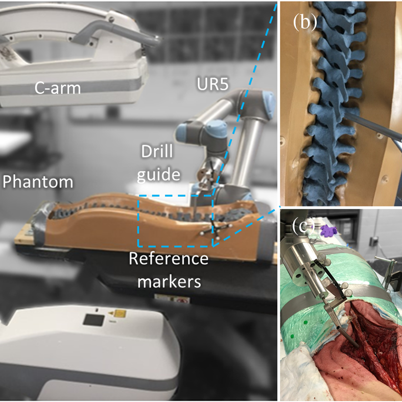 Read more about the article Robotic drill guide positioning using known-component 3D–2D image registration