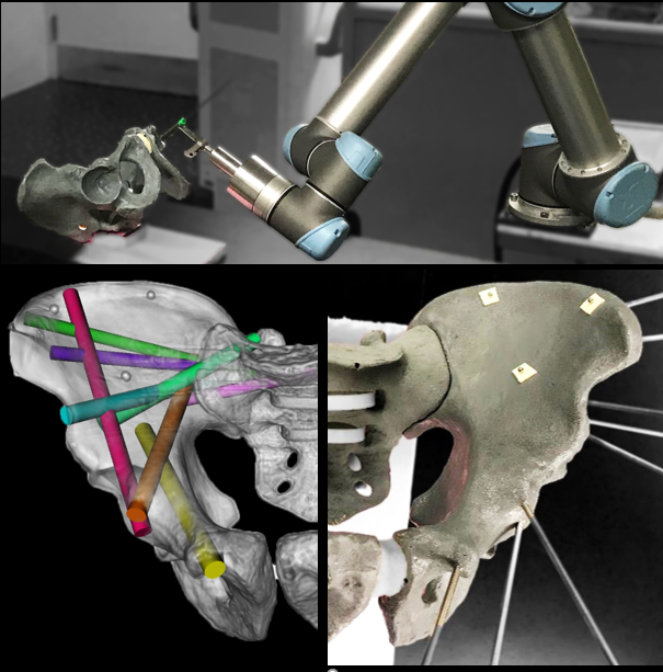 """<p style=""""text-align: left;"""">New imaging and image registration methods developed at the I‑STAR lab open new avenues for precision and accuracy in image-guided robotics. Unlike many existing robotic solutions that rely on conventional surgical tracking and rigid registration to preoperative imaging, intraoperative image-guidance offers a simplified workflow that is resilient to changes imparted by tissue deformation. Intraoperative imaging with quality sufficient to visualize, target, and drive accurate rigid/deformable registration can take fuller advantage of high-precision robotics, with added potential benefits to patient safety through eliminating hand tremor, enforcing remote center-of-motion at ports of entry, force limiting safeguards, elimination of fulcrum effect, micro-scaling of movements, and path planning/optimization. General-purpose prototype robotic platforms are used in cadaver studies to evaluate geometric accuracy, workflow, and establish a testbed for translation to future clinical studies.</p>"""