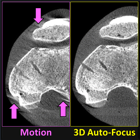 Journal Article by Alex Sisniega Brings CT Motion Artifacts into Focus